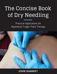 The Concise Book of Dry Needling: A Practitioner's Guide to Myofascial Trigger Point Applications